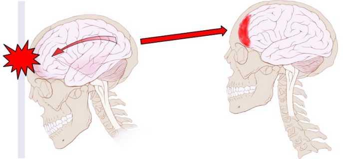 Ушиб головного мозга человека