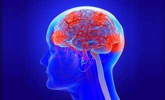 Проблемы с сосудами головного мозга