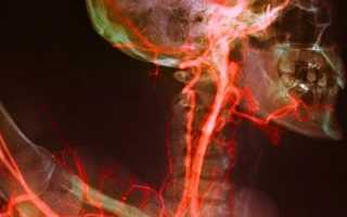 Строение сосудистой системы головы и шеи, её патологии и лечение