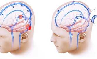 Причины и симптомы внутричерепной гипертензии