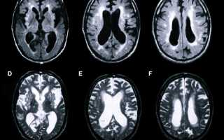 Этапы проведения и противопоказания МРТ сосудов головного мозга