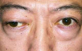 Методы лечения миастении