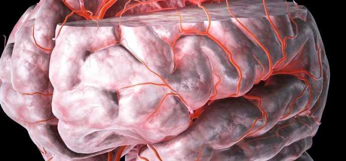 Причины, признаки, диагностика и лечение ОНМК по ишемическому типу