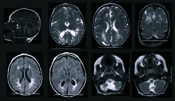 Снимки головы