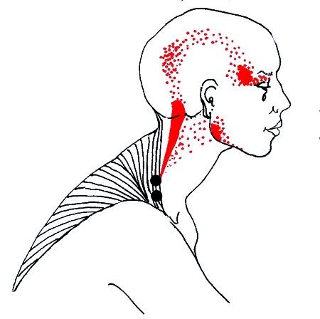 Болит шея отдает в голову лечение thumbnail